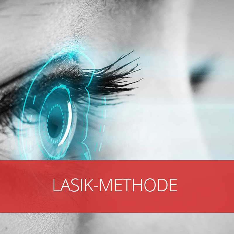 Lasik-Methode